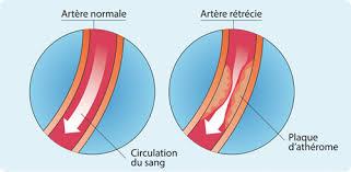 pathologies artérielles